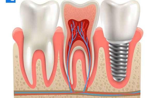 License Rear Molars Teeth Full Version Pc Keygen 64bit