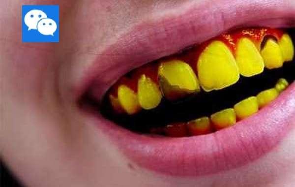 32 Do People Red Hair Have Yellow Teeth Pro Full .rar